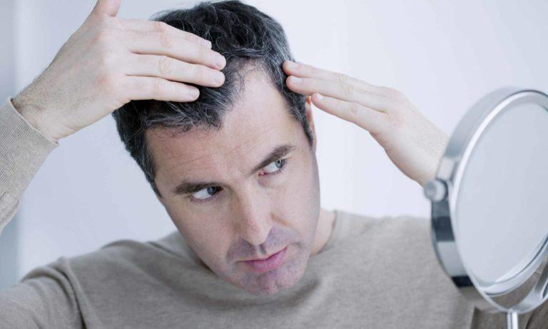 почему седеют волосы у молодых мужчин