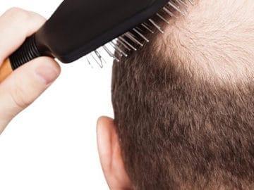 выпадение волос у мужчин причины и лечение